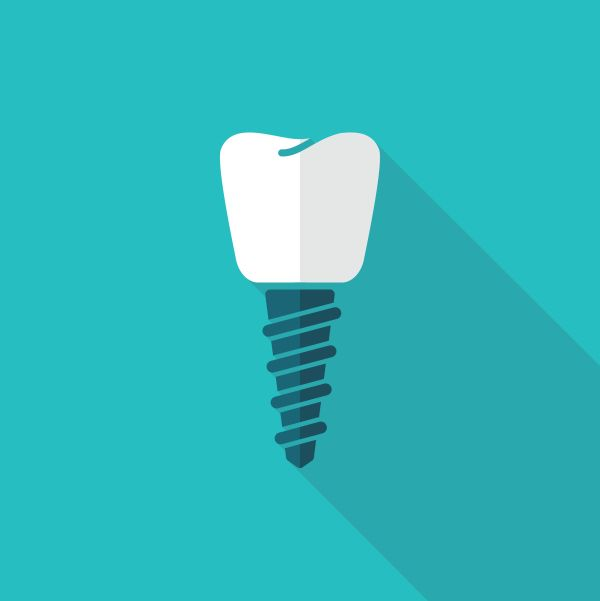Are There Signs Of Dental Implant Failure?